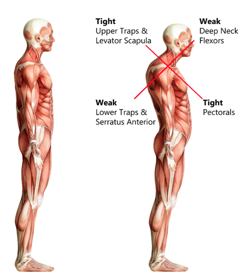 upper crossed syndrome, St. George, Chiropractor